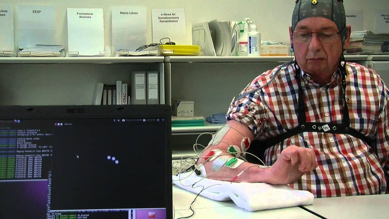 استخدام-واجهات-التفاعل-بين-العقل-والحاسب-في-التعافي-السريع-بعد-السكتات-الدماغية